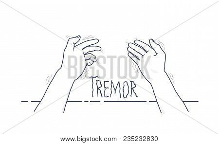 Tremor Hands. First-person View Of Shaking Hands. Symptom Of Parkinson's Disease. Medical Vector Ill