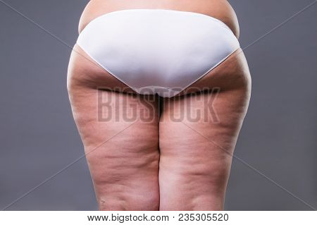 Fat Female Body With Cellulite, Overweight Hips And Buttocks On Gray Background