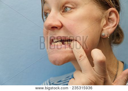 Women Without Tooth (broken)