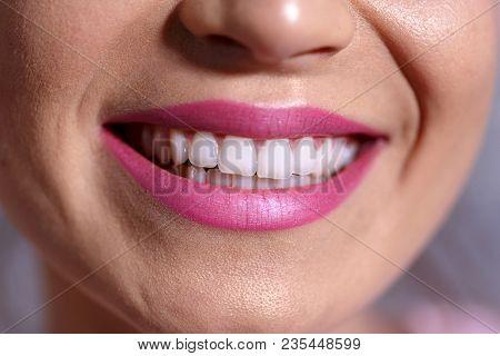 Beautiful Woman Smile. Teeth Whitening. Dental Care Health Background