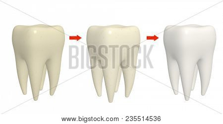 Cleaning tooth process. Human tooth with different enamel color. Isolated on white background. 3d render