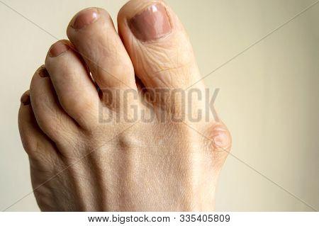 Hallux Valgus, Big Abnormal Foot Bone.  Bunion On Big Toe Of Female Foot Isolated On Light Backgroun