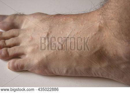 Allergic Reaction On The Leg. Rash On The Foot. Dermatological Disease. Pimples On The Leg