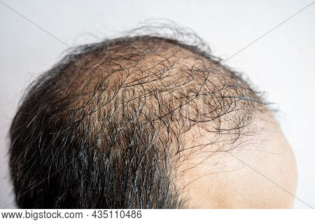 Side View Of Baldness Men's Head With Thin Hair On His Top And Forehead. Conceptual Of Hair Problem
