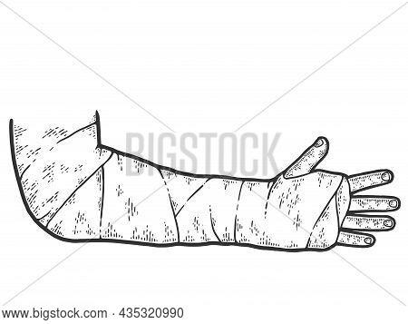 Broken Arm, Bone Fracture, Trauma, Orthopedic Plaster Cast. Sketch Scratch Board Imitation.
