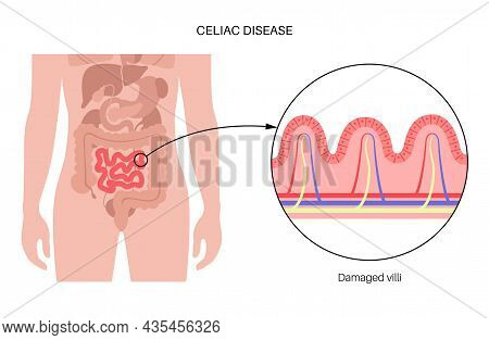 Celiac Disease Inflammation. Damaged Intestinal Villi In Surface Area Of Intestinal Walls. Small Int