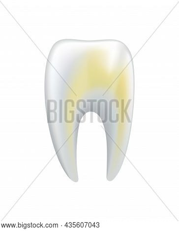 Illnessed Human Tooth. Dental Medical Vector Icon. Need Dental Care For Stained Teeth Or Tooth Carie