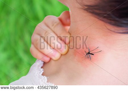 Cute Asian Baby Girl Has Rash And Allergy On Neck Skin From Mosquito Bite And Sucking Blood While Pl