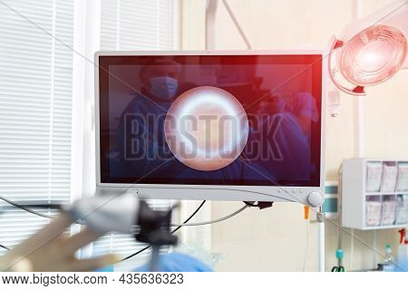 Process Of Surgery Operation Using Laparoscopic Equipment. Operating Room With Surgery Equipment. Me