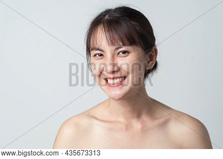 Young Asian Woman No Makeup And Smiling Confident With Freckle On Face. Concept Skin Care.