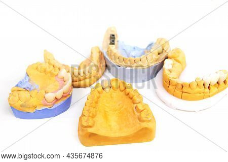 Implantation Of Teeth. Manufacturing Of Prosthetic Teeth In A Dental Laboratory. Jaws With Teeth On