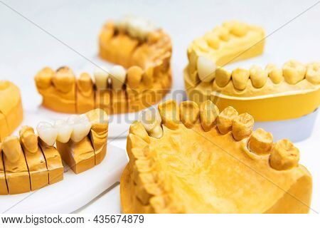 Dental Implants. Mock Jaws Of A Man With Artificial Teeth. Prosthetic Teeth.