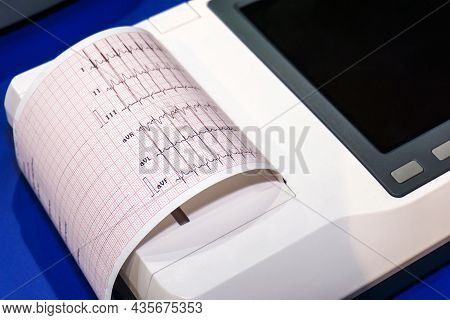 Ecg Device With Printout On Paper. Mobile Equipment For The Rapid Diagnosis Of Heart Disease.