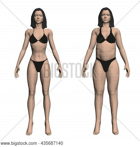 Two Model Girls In Underwear, A Slim And Fat Girl. The Process Of Obesity Of The Girl Body. Front Vi