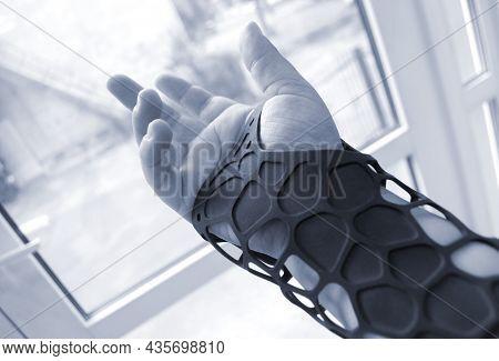 Black Orthopedic Plastic Prosthesis Printed On 3d Printer On Hand.