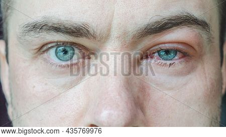 Close Up Of Severe Bloodshot Red Blood Eye Of Male Affected By Conjunctivitis Or After Allergy. Man