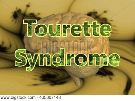 Lettering Tourette Syndrome Is A Neurological Disorder That Causes Uncontrollable Repetitive Movemen