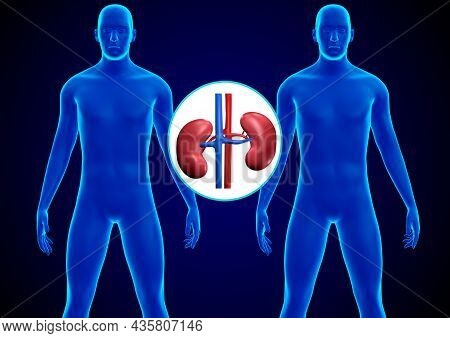 Human Kidney Transplant. Replacement Of A Sick Kidney With A Healthy Donor Kidney. 3d Rendering