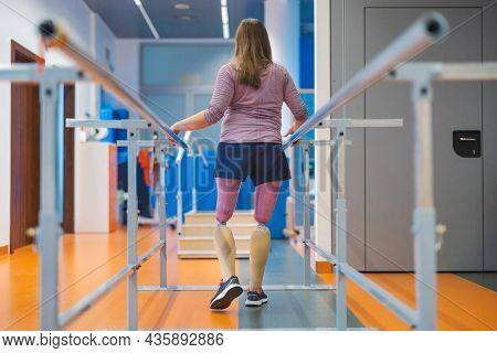 Woman with prosthetic legs using parallel bars