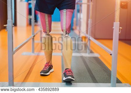Close up of a woman with prosthetic legs using parallel bars