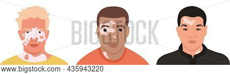 A Set Of Men With Vitiligo Of Different Nationalities And Appearances. Flat Vector Illustration. Ski