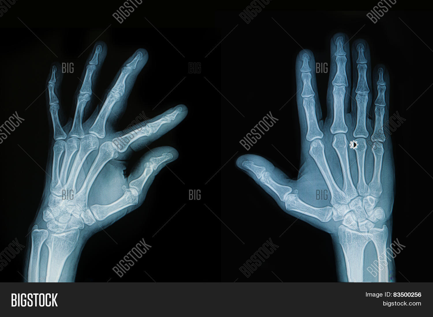 X Ray Hand Finger Image Photo Free Trial Bigstock