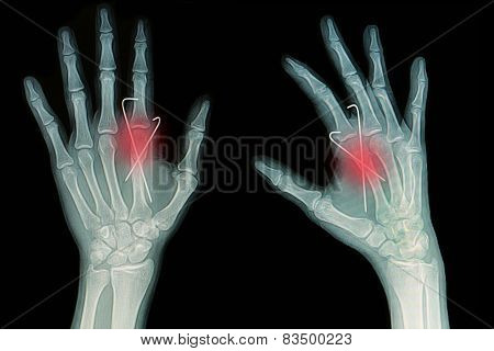 Film X-ray Of Hand Fracture : Show Fracture Metacarpal Bone Insert With K-wire (kirschner Wire)