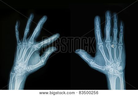 X-ray Hand And Finger