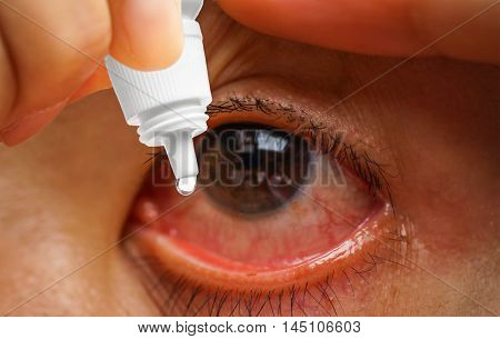 Dripping a red eye with eye drops close up