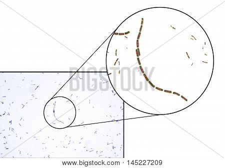 Bacillus anthracis, light micrograph and 3D illustration, gram-positive spore forming bacteria which cause anthrax and are used as biological weapon