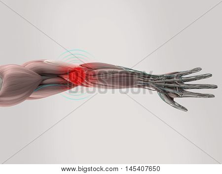 Anatomy model showing elbow pain. On plain studio background. 3D illustration