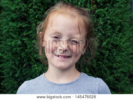 Close up winking redhead girl with freckles against green bushes