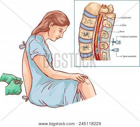 Vector Illustration Of A Epidural Nerve Block Injection