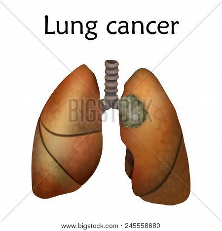 Human Lungs. Lung Cancer. Anatomy Vector Illustration. White Background.