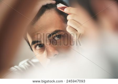 White Metrosexual Man Worried For Alopecia, Applying Lotion For Hair Growing. Young Person Checking