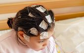 Girl with EEG electrodes attached to her head poster