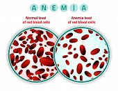 Normal level of red blood cells in comparison with iron deficiency anemia level. Medical and healthcare concept. Vector illustration isolated on a white background. poster
