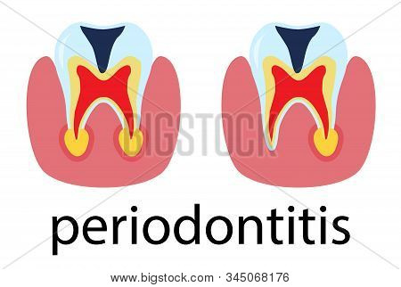 Dental Treatment Poster Periodontitis. Human Molar Tooth