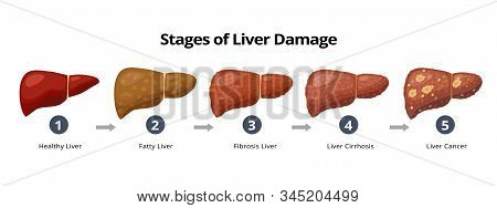 Stages Of Liver Damage From Healthy, Fatty Liver, Fibrosis, Cirrhosis To Liver Cancer. Medical Infog