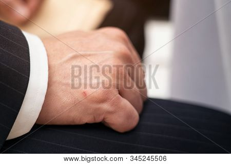 Bussiness Man Showing A Little Lesion On His Hand, Accident Wounded Male Hand, Wound Marks On The Ri