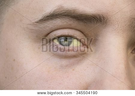 The Yellow Color Of The Male Eye. Symptom Of Jaundice, Hepatitis Or Problems With The Gall Bladder,