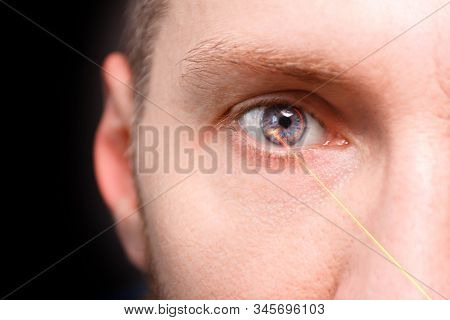 Technology Of Laser Vision Correction On A Human Eye Imprint. Eye Imaging Surgery. Technology Of The