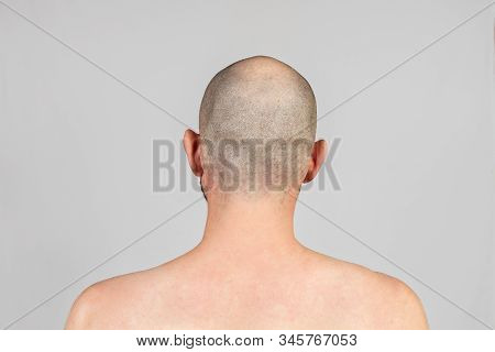 Male Alopecia. A Man With A Bald Head. Rear View. Gray Background. Copy Space