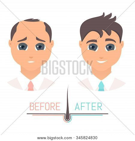 Man Before And After Hair Loss Treatment In Front View