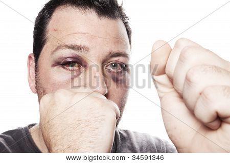 Black Eye Injury Boxer Violence Isolated