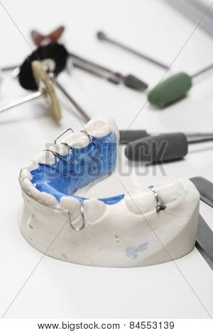 Orthodontic trainer, the chance of a beautiful smile