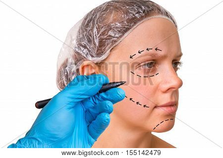 Doctor Makes Dotted Lines On Female Face For Cosmetic Face Lift