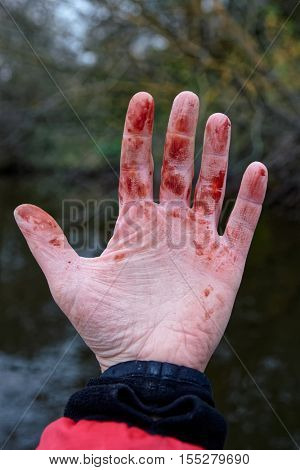 Minor but bloody trauma to wrist, coagulated blood, withered skin