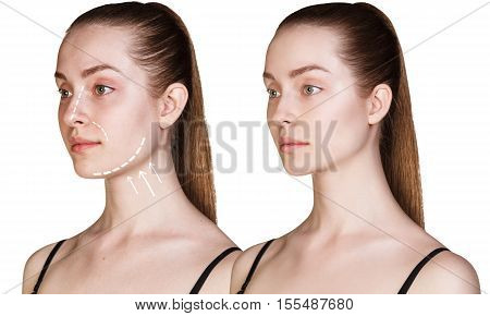 Beautiful young woman with arrows on face. Cosmitic procedures concept.