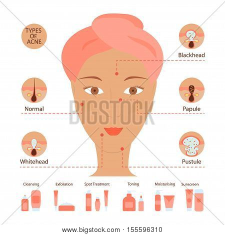 Types of acne pimples human skin poster. Facial treatments infographic. Modern flat design. Sebum in clogged pore, growth bacteria, redness, inflammation. Womens Beauty care. Vector illustration eps10